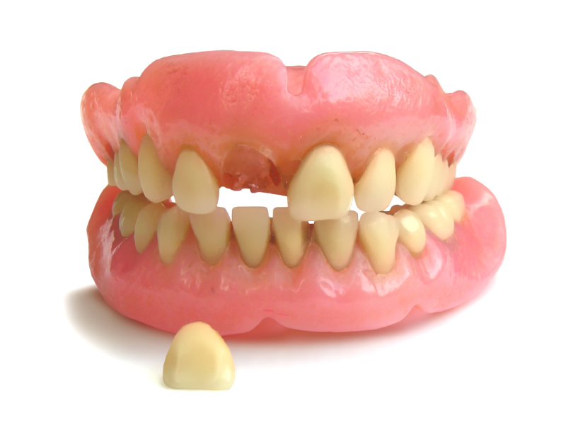 Fastest Denture Repair in New Market That Provides Dental Fitness